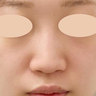 A CLINIC(エークリニック)銀座院のお鼻の施術はダウンタイムが長いと思っていませんか?【A式鼻先シャープ術,ジャスミンノーズ,小鼻縮小術(埋没法),鼻先縮小術】の症例写真(ビフォー)