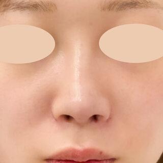 A CLINIC(エークリニック)銀座院のお鼻の施術はダウンタイムが長いと思っていませんか?【A式鼻先シャープ術,ジャスミンノーズ,小鼻縮小術(埋没法),鼻先縮小術】の症例写真(アフター)