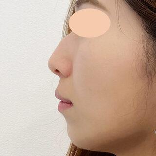 A CLINIC(エークリニック)銀座院のA式鼻先シャープ術とヒアルロン酸注入で360度どこから見ても理想的なお鼻に!【A式鼻先シャープ術,ジャスミンノーズ】の症例写真(ビフォー)