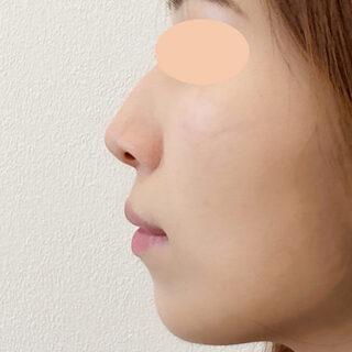 A CLINIC(エークリニック)銀座院のA式鼻先シャープ術とヒアルロン酸注入で360度どこから見ても理想的なお鼻に!【A式鼻先シャープ術,ジャスミンノーズ】の症例写真(アフター)