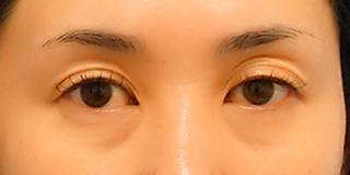 麹町皮ふ科・形成外科クリニックの目のクマ(経結膜脱脂術)の症例28日後の症例写真(ビフォー)