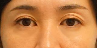 麹町皮ふ科・形成外科クリニックの目のクマ(経結膜脱脂術)の症例28日後の症例写真(アフター)