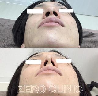 東京ゼロクリニック銀座の鼻尖形成+アディポトロフィンの症例写真(ビフォー)