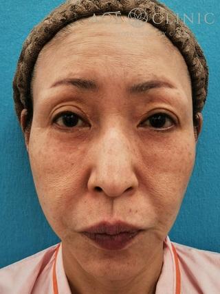 エースクリニックのリフトアップ手術の症例写真(ビフォー)