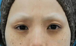 エースクリニックの眼瞼下垂の症例写真(ビフォー)
