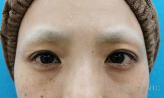 エースクリニックの眼瞼下垂の症例写真(アフター)