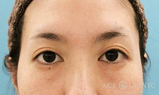 エースクリニックのクマ治療 経結膜ハムラ法の症例写真(ビフォー)
