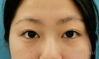 エースクリニックの眼瞼下垂/眼瞼挙筋前転術の症例写真(ビフォー)