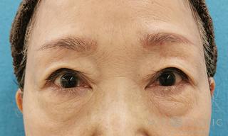 エースクリニックの眼瞼下垂/眼瞼挙筋前転術の症例写真(アフター)