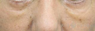 エースクリニックの目の下のクマ・たるみ/脱脂CRF法の症例写真(アフター)