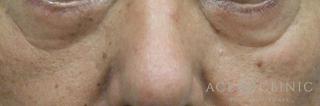 エースクリニックの目の下のクマ・たるみ/脱脂CRF法の症例写真(ビフォー)