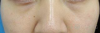 エースクリニックの目の下のクマ・たるみ/ウルセラアイ・サーマクールアイ(切らない治療)の症例写真(アフター)