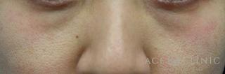 エースクリニックの目の下のクマ・たるみ/ウルセラアイ・サーマクールアイ(切らない治療)の症例写真(ビフォー)