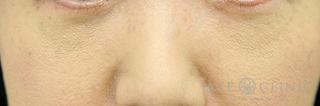 エースクリニックのクマ治療 経結膜ハムラ法の症例写真(アフター)