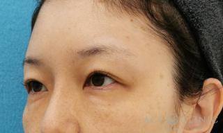 エースクリニックのヒアルロン酸注入の症例写真(アフター)