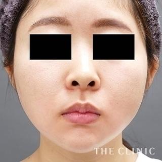 THE CLINIC(ザ・クリニック)大阪院の顔のベイザー脂肪吸引の症例写真(アフター)