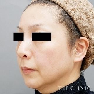 THE CLINIC(ザ・クリニック)大阪院の目の下のクマ、口元のシワへのマイクロCRF注入の症例写真(アフター)