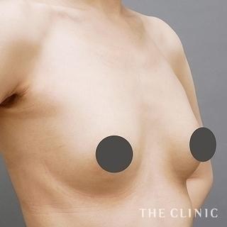 THE CLINIC(ザ・クリニック)大阪院のシリコンバッグ豊胸の修正(バッグ除去+脂肪注入豊胸)の症例写真(アフター)
