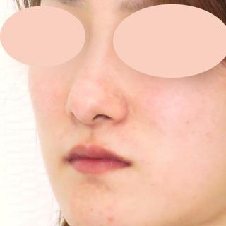 A CLINIC(エークリニック)銀座院の傷跡も残らない、理想の鼻になれる【隆鼻術(プロテーゼ)】の症例写真(ビフォー)
