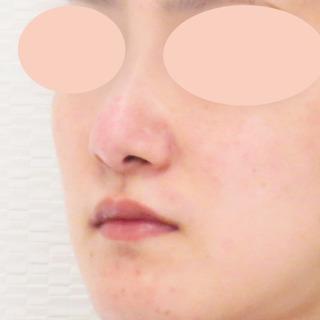 A CLINIC(エークリニック)銀座院の傷跡も残らない、理想の鼻になれる【隆鼻術(プロテーゼ)】の症例写真(アフター)
