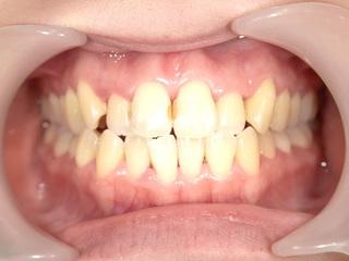 東京美容外科 東京新宿院の【オールセラミック】上前歯6本の症例写真(ビフォー)