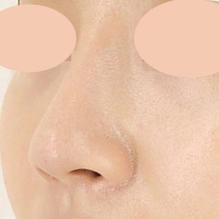 A CLINIC(エークリニック)銀座院の憧れのスッとした鼻立ちに☆【隆鼻術(プロテーゼ)】の症例写真(アフター)
