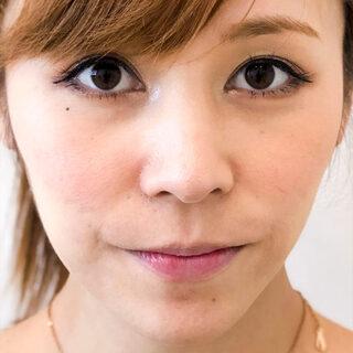 A CLINIC(エークリニック)銀座院の小鼻(鼻翼)の広がりや大きさが気になる方へ♪【小鼻縮小術切開法】の症例写真(アフター)