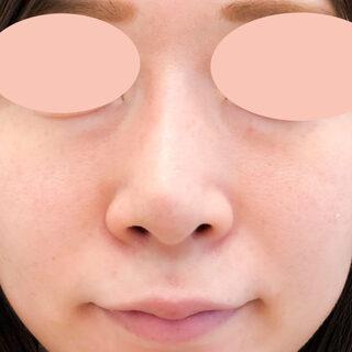 A CLINIC(エークリニック)銀座院の小鼻を小さくしてバランスの良いお鼻に♪【小鼻縮小術切開法】の症例写真(ビフォー)