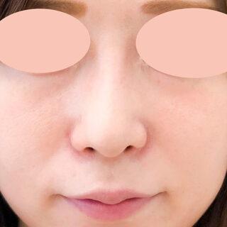 A CLINIC(エークリニック)銀座院の小鼻を小さくしてバランスの良いお鼻に♪【小鼻縮小術切開法】の症例写真(アフター)