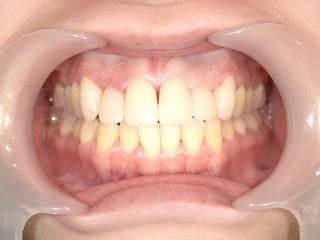 東京美容外科 東京新宿院の【オールセラミック】上前歯6本の症例写真(アフター)