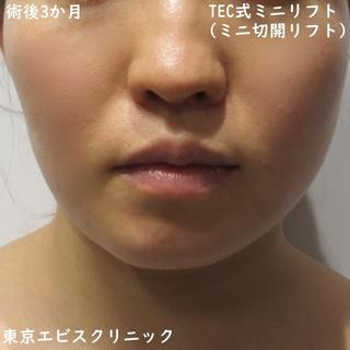 東京エビスクリニックのミニ切開リフト(TEC式ミニリフト)の症例写真(アフター)