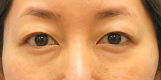 麹町皮ふ科・形成外科クリニックの埋没4点留めの症例写真(ビフォー)