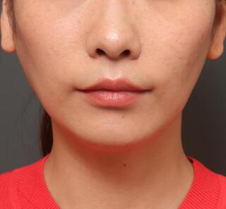 オザキクリニックLUXE新宿の人中短縮(リップリフト)+口角挙上(スマイルリップ)の症例写真(アフター)
