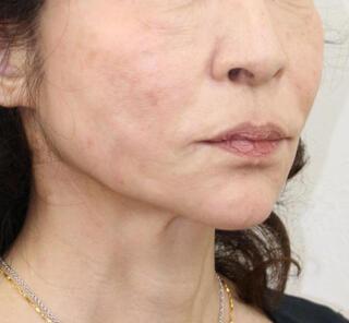 オザキクリニック目黒祐天寺院のVライン小顔リフトの症例写真(アフター)
