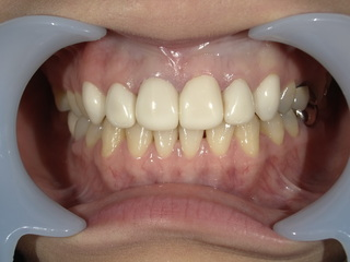 東京美容外科 東京新宿院の【ジルコニア】上前歯6本の症例写真(アフター)