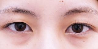 セルリアンタワーイセアクリニック(東京イセアクリニック渋谷院)の埋没法ダブルの症例写真(ビフォー)