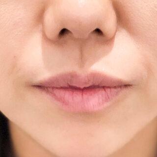 A CLINIC(エークリニック)銀座院の加齢と共に薄くなる唇も簡単にケアできます♪【スマイルリップ】の症例写真(ビフォー)