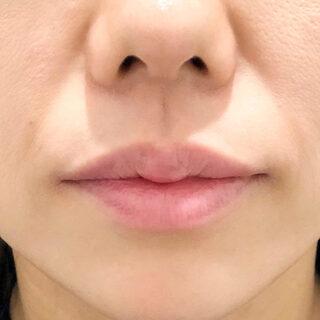 A CLINIC(エークリニック)銀座院の加齢と共に薄くなる唇も簡単にケアできます♪【スマイルリップ】の症例写真(アフター)
