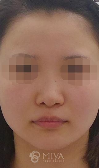MIYAフェイスクリニックの鼻プロテーゼで鼻筋の通った自然な鼻への症例写真(ビフォー)