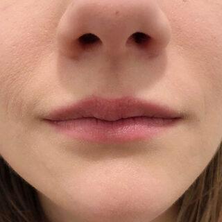 A CLINIC(エークリニック)銀座院のモテ唇を手に入れてセクシーな女性になる♪【スマイルリップ】の症例写真(ビフォー)