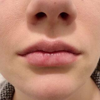 A CLINIC(エークリニック)銀座院のモテ唇を手に入れてセクシーな女性になる♪【スマイルリップ】の症例写真(アフター)