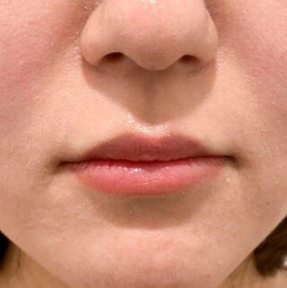 A CLINIC(エークリニック)銀座院のふっくらとハリのある理想的な唇を形成する♪【スマイルリップ】の症例写真(ビフォー)
