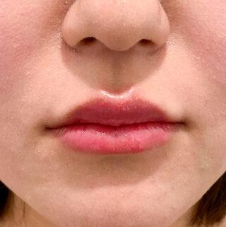 A CLINIC(エークリニック)銀座院のふっくらとハリのある理想的な唇を形成する♪【スマイルリップ】の症例写真(アフター)