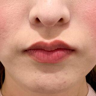 A CLINIC(エークリニック)銀座院の印象的な女性らしい唇に♪【スマイルリップ】の症例写真(ビフォー)