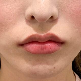 A CLINIC(エークリニック)銀座院の印象的な女性らしい唇に♪【スマイルリップ】の症例写真(アフター)