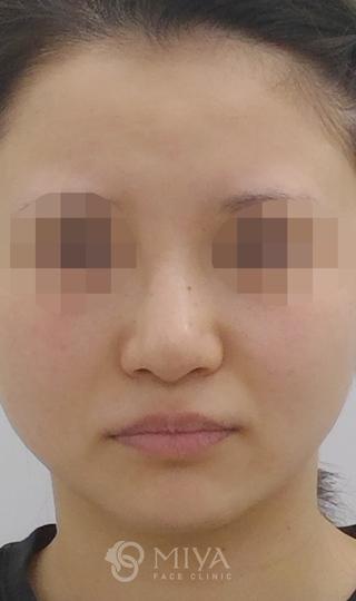 MIYAフェイスクリニックの鼻プロテーゼで鼻筋の通った自然な鼻への症例写真(アフター)
