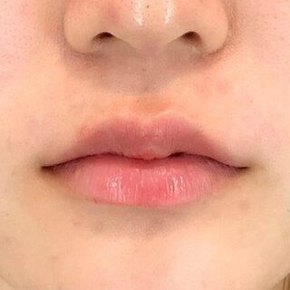 A CLINIC(エークリニック)銀座院のヒアルロン酸注入でふっくらぷるぷるのモテ唇になれる♪【スマイルリップ】の症例写真(アフター)