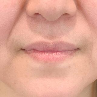 A CLINIC(エークリニック)銀座院の唇のエイジングケアにも♪ふっくらとハリのある若々しい唇に!【スマイルリップ】の症例写真(ビフォー)
