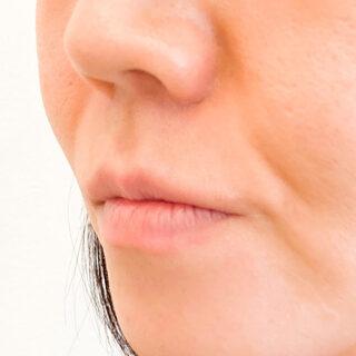 A CLINIC(エークリニック)銀座院の唇へのヒアルロン酸注入でエイジングケア♪【スマイルリップ】の症例写真(ビフォー)