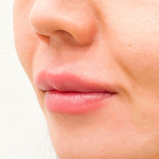 A CLINIC(エークリニック)銀座院の唇へのヒアルロン酸注入でエイジングケア♪【スマイルリップ】の症例写真(アフター)